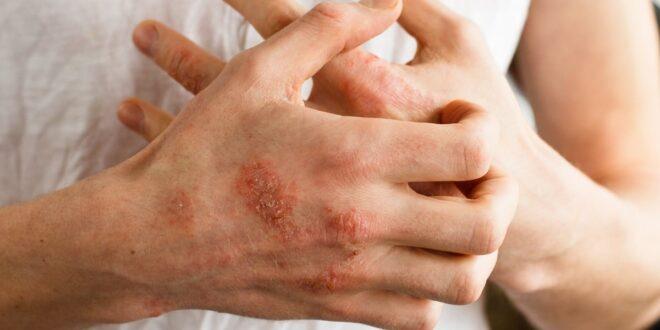 7 طرق .. علاج الأكزيما بالأعشاب