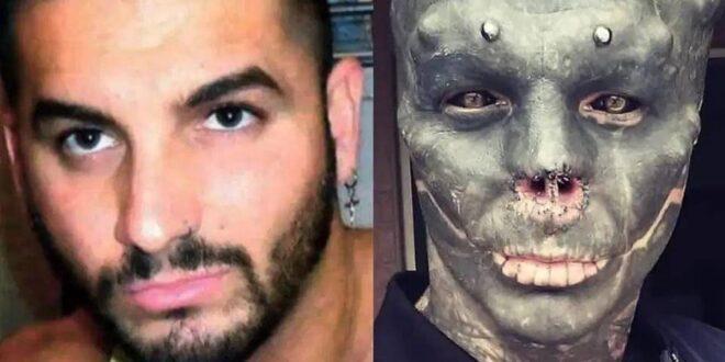"""قطع أنفه وشفته العليا.. فرنسي يحول نفسه إلى """"كائن فضائي أسود""""! صو"""