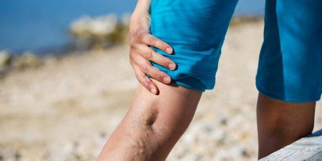علاج دوالي الساقين بمواد طبيعية