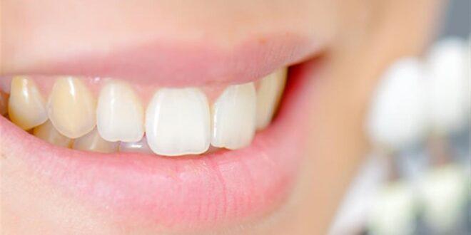 ابتسامتك صفراء؟.. 6 وصفات منزلية لاستعادة بياض الأسنان