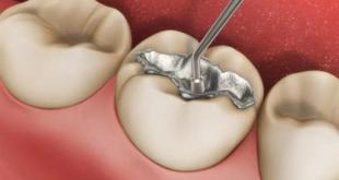 احذر المادة الداخلة في صناعة حشوات الأسنان …مادة سامة