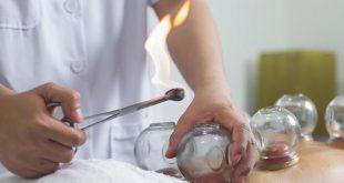 الحجامة أفضل العلاجات البديلة.. متى يجب تطبيقها؟