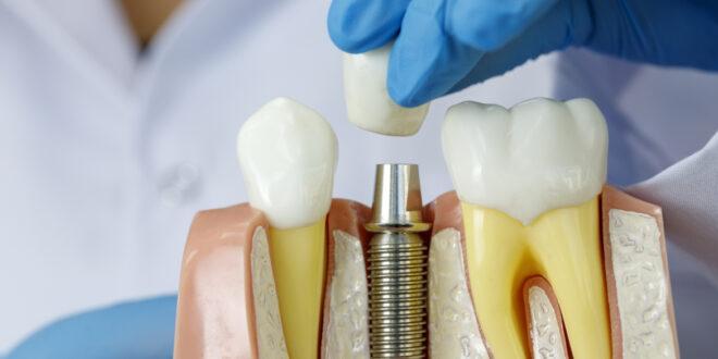 قبل اتخاذ هذه الخطوة.. إليكم كل ما تريدون معرفته عن زراعة الأسنان