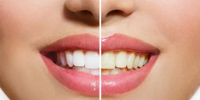 غير الفرشاة والمعجون.. حيل مدهشة لحماية الأسنان من الاصفرار