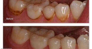 كيف تتخلص من البقع البنية على الأسنان
