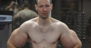 """بوباي روسيا : أشعر بالغباء بعد """"عملية العضلات"""
