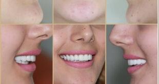 """""""أسنانك علينا"""".. إطلاق منصة علاج مجاني للأسنان في دمشق"""