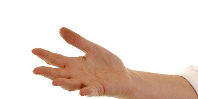 ندب راحة اليد قد تشير إلى مرض قاتل