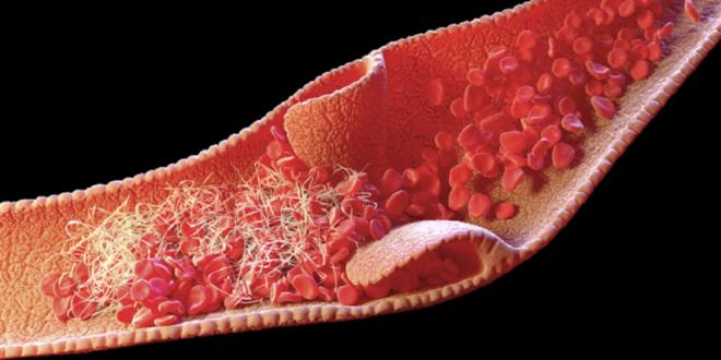 أعراض تجلّط الدم وكيف تكتشف الحالات