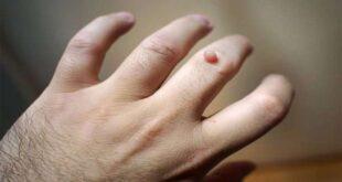 طرق طبيعية لتجفيف الزائدة الجلدية