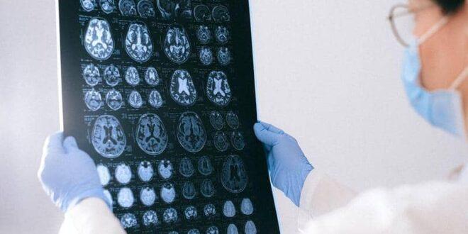 أطباء كندا في حيرة شديدة.. مرض جديد يسبب الهلوسة والوفاة