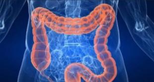 10 أعراض غير متوقعة تشير لسرطان القولون