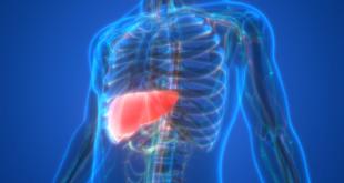 أعراض لمرض الكبد الدهني يمكن
