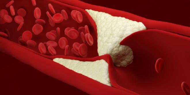 بدء خفض مستويات الكوليسترول