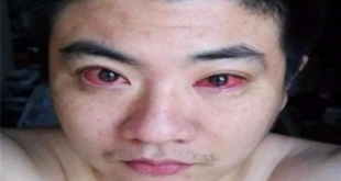 تحذير.. رجل أصيب بسرطان العين.. والسبب عادة يومية نفعلها كل يوم!