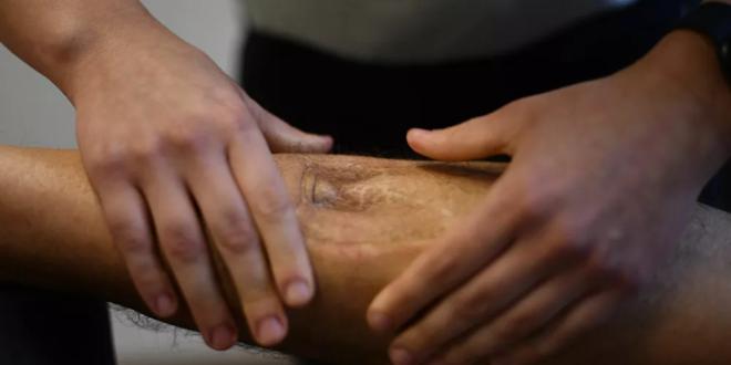 """5 أعراض لـ """"الموت الصامت"""" في الساقين يحذر منها العلماء"""