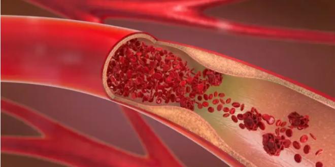 أعراض ارتفاع ضغط الدم وأعراض تصلب الشرايين