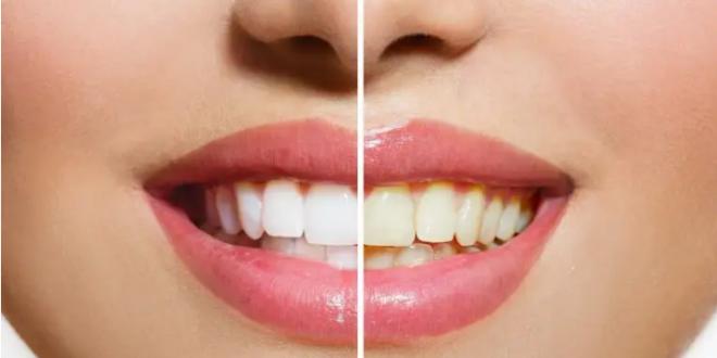 لتبدو أسنانك أكثر بياضاً