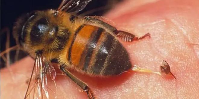فوائد علاجية لسم النحل