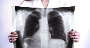 علاج ثوري للقضاء على سرطان الرئة