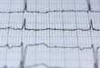 علامات تحذّر من الإصابة بالنوبة القلبية الصامتة