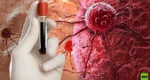 كيف نتعرف على إصابة الشخص بالسرطان