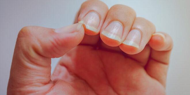تغيّرات الأظافر تمثل مؤشرا قويا على الإصابة بالتهاب المفاصل