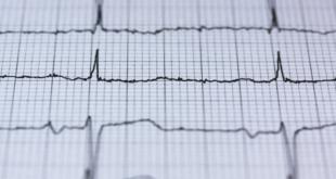 العلامات الأقل شهرة للنوبة القلبية الخطيرة