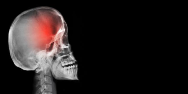 الصداع قد يكون علامة على وجود ورم في المخ!
