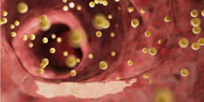 خفض الكوليسترول في الدم بشكل طبيعي