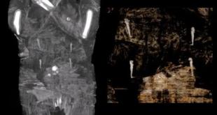 العلماء مصدومون.. اكتشاف مومياء مصرية حامل في شهرها السابع