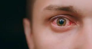 تغييرات في عيونكم تدل على أمراض خطرة