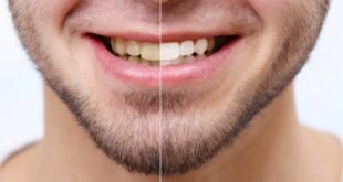 وصفات طبيعية لتبييض الأسنان منزلياً وبدون تكاليف