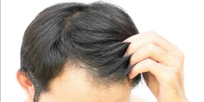 مصري يدمن على أكل شعر بدنه.. وهكذا كان مصيره!
