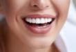 ستذهلك فعاليته في تبييض الأسنان