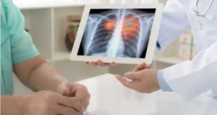 علامات مبكرة لسرطان الرئة