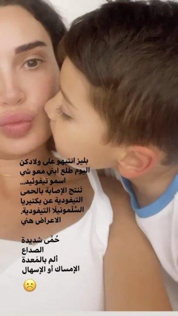 إبن سيرين عبد النور مصاب بهذا المرض