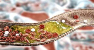 إحساس في ساقيك يدل على ارتفاع مستويات الكوليسترول!