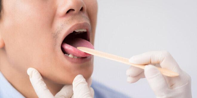 """علامات تحذيرية """"داخل الفم"""" لمستويات فيتامين B12"""