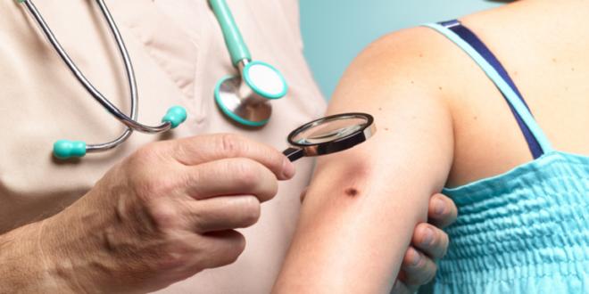 إنذار مبكر لأكثر أشكال سرطان الجلد انتشارا