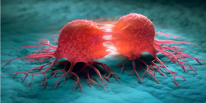 اختبار للدم يكشف عن مرض السرطان