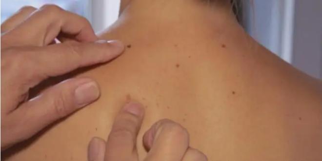 خطوات بسيطة يمكنك تجربتها.. للوقاية من سرطان الجلد