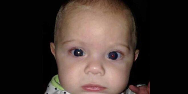 اكتشفت إصابة ابنها بمرض خطير من صورة