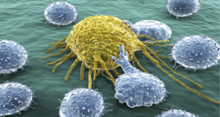 """الكشف عن طريقة جديدة """"محيّرة"""" لعلاج السرطان"""