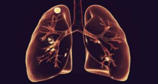 العلامات الأكثر شيوعا لسرطان الرئة