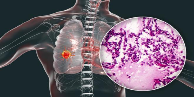 الجسم قد تكون علامات منذرة بسرطان الرئة