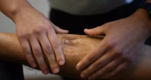 علامات على الساق تشير إلى إصابتك بجلطة