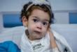 الطفلة المصرية ليال التي تلقت أغلى أبرة علاج في العالم