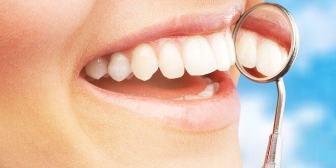 لماذا تظهر البقع البيضاء على أسناننا.. وكيف نتخلص منها؟