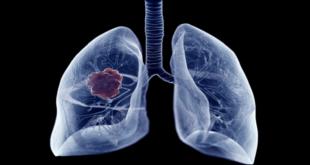 المشي قد تكشف عن الإصابة بسرطان الرئة